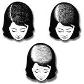 Female Pattern Baldness