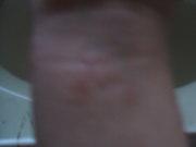 Alopecians with eczema