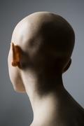Chemo-Induced Alopecia
