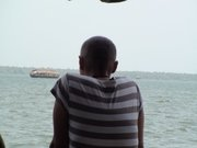 Alopecia India