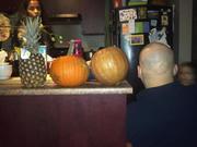 Montréal Alopecia support group/ groupe de soutien contre l'alopecie