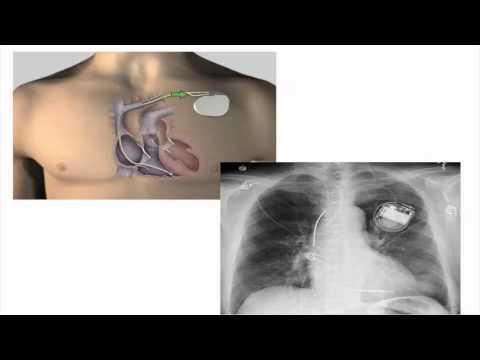 Webinar: Cardiac Care for Adults with Duchenne