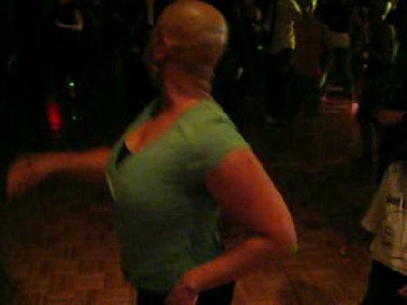 Name that Alopecian