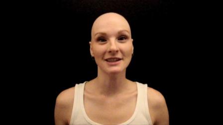 A Year of Alopecia