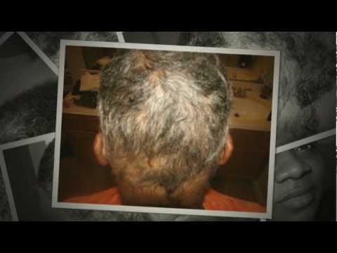 Alopecia-The Beginning but Not the End part 2