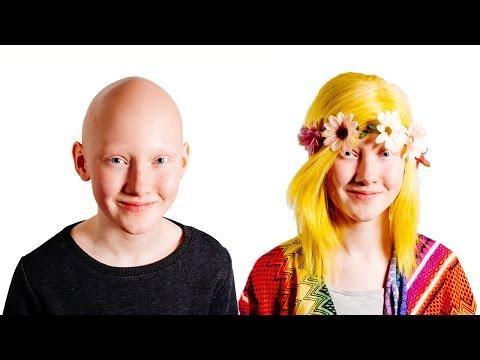 Alopecia Schoolgirl Models Wigs To Inspire Sufferers