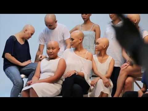 Alopecia Areata Awareness Video - Philippines 2013