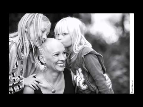 Head-On, Stories of Alopecia Book Trailer