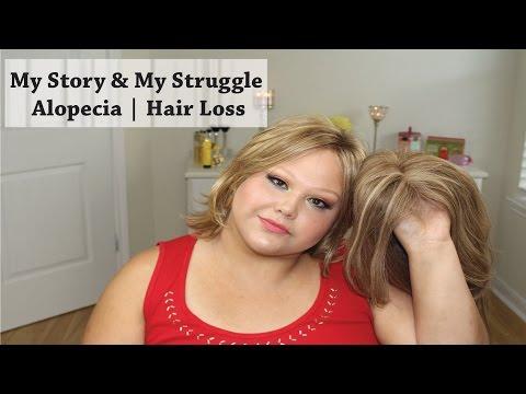 My Story & My Struggle - Living with Alopecia | Hair Loss