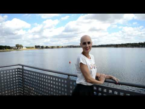 My life with alopecia areata