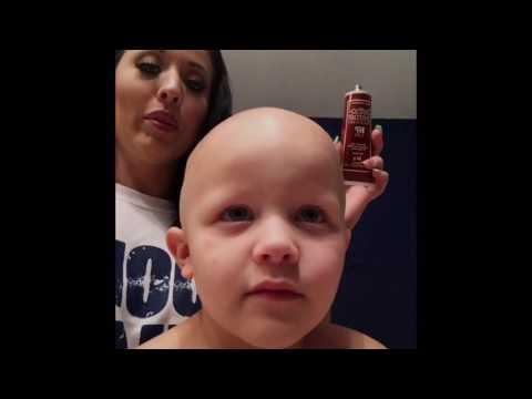 Tommy's Alopecia Journey