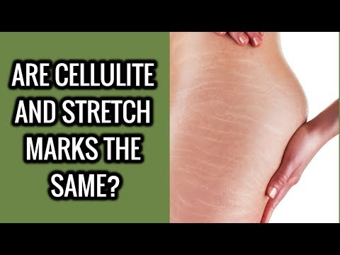 Are Cellulite And Stretch Marks The Same