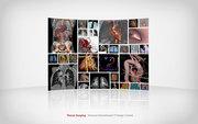 Siemens International CT Image Contest
