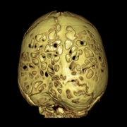 Copper Beaten Skull