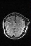 MRI brain case