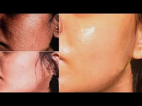 Rejuvenation Of Skin || Explain By Dr. Ajaya Kashyap, Delhi, India
