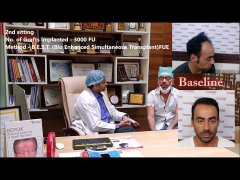 Hair Transplant Testimonial Brazilian Patient - DermaClinix India   Dr Kavish Chouhan, MD (AIIMS)