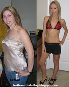 Teri Leventhal Before and After