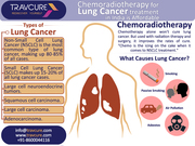 Chemoradiotherapy for Lung Cancer treatment in India is Affordable