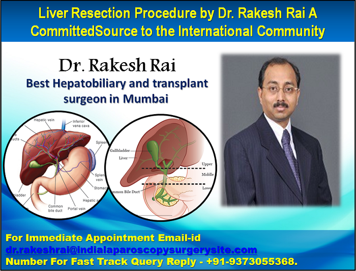 Liver Resection Procedure by Dr. Rakesh Rai A Committed Source to the International Community