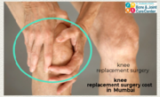 knee replacement surgery cost  in  Mumbai