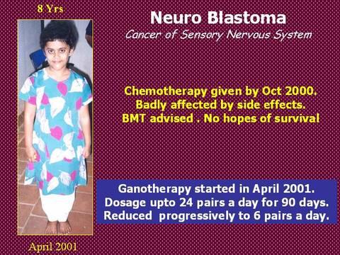 Cancer del sisteman nervioso sensorial
