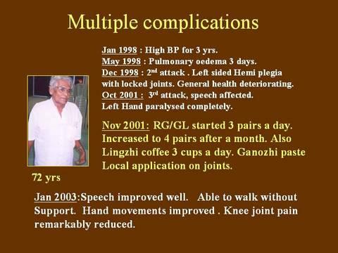 complicaciones multiples- edema pulmonar, entre otros