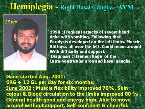 ganglio basal derecho