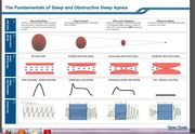 Fundamental Stages of Sleep Apnoea