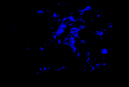 splatter