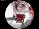 Simulation: Enhancing Realism of Wet Surfaces in Surgical Simulation