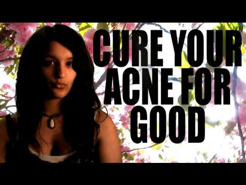 How to cure your acne ONCE AND FOR ALL - Top SEVEN Tips