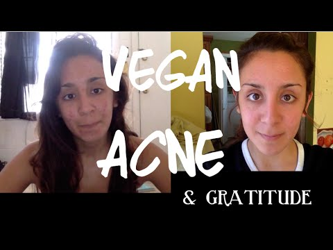 Skin Issues & Gratitude for Acne Scars