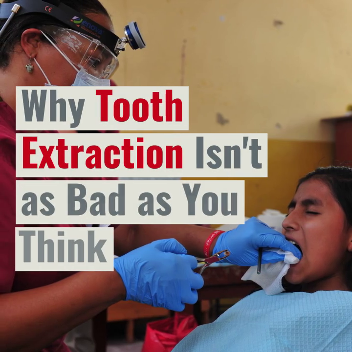 Why Tooth Extraction Isn't as Bad as You Think