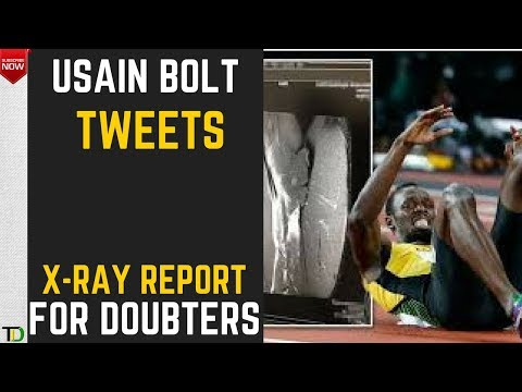 Usain Bolt tweets X-Ray Picture of Grade 4 Hamstring TEAR after people sadly QUESTIONED his INJURY.