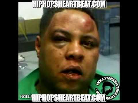 Chris Hines Speaks On Why Lloys Banks Beat Him Down For 20 Minutes.Looks Worst Than Rihanna?