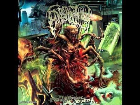 Epicardiectomy - Horrendous Festering Transmutation