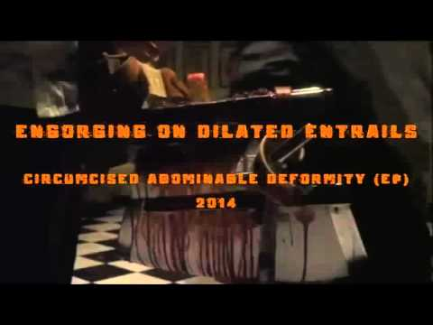 SYPHILECTOMY - Engorging On Dilated Entrails (UNOFFICIAL VIDEO)