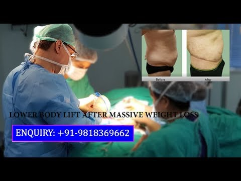 Lower Body Lift Surgery After Massive Weight Loss by Dr. Ajaya Kashyap, Delhi, India