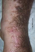 Cutaneous Vascular Diseases