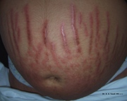 Dermatoses of Pregnancy