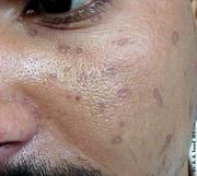 Disseminated Superficial Actinic Porokeratosis (face)
