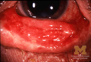 Stevens-Johnson Syndrome Conjunctivitis