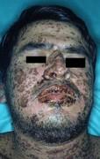 Stevens johnson syndrome