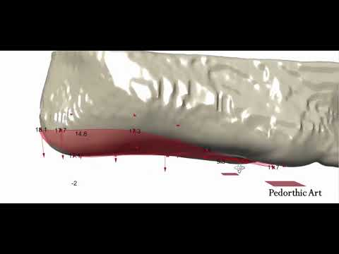 Parametric design of a foot orthosis and a positive cast