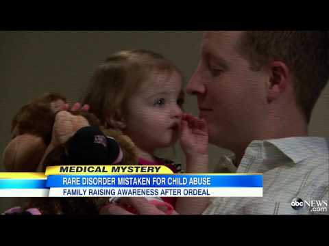 Rare Brittle Bone Disorder Mistaken for Child Abuse