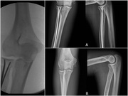 INTRAMEDULLARY REDUCTION AND STABILIZATION TO TREAT RADIAL NECK FRACTURES IN ADULTS