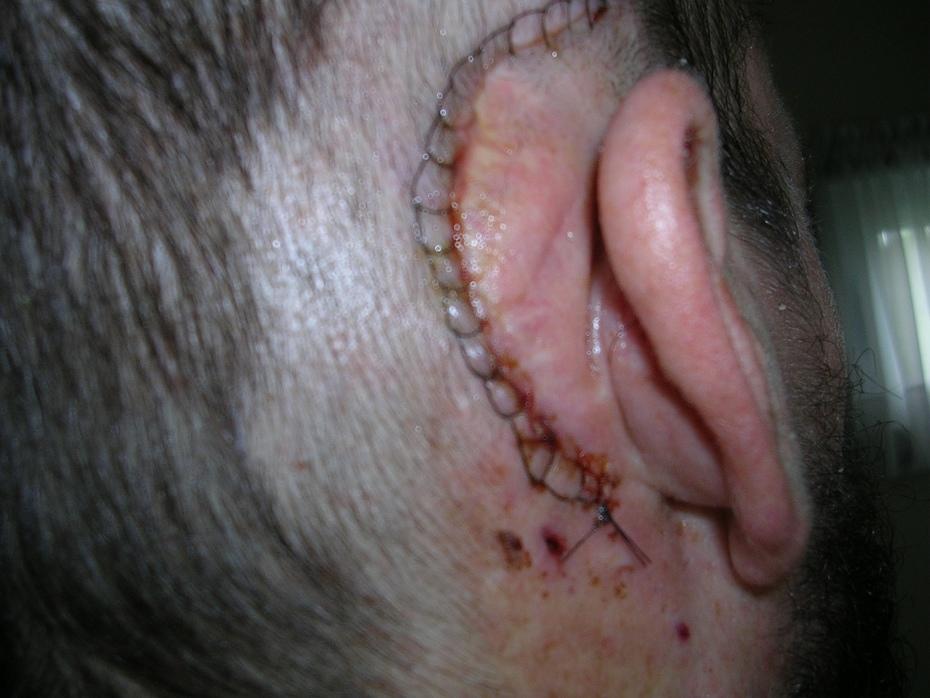 post-op scar 6-22-11