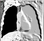 Opensource Image Analysis