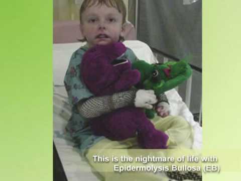 Epidermolysis Bullosa (EB) Awareness video (extended)